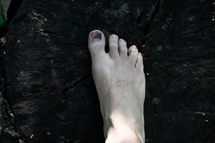 back toenail