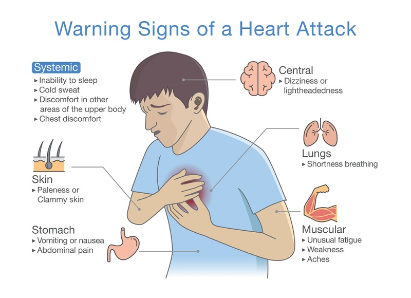 heart attack symptoms and signs in men
