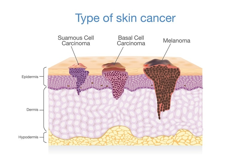 type of skin cancer